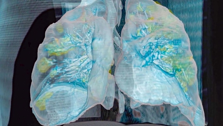 How COVID destroys organs and kills humans