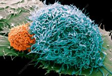 Scientists explain how cancer cells evade the immune response after radiation exposure