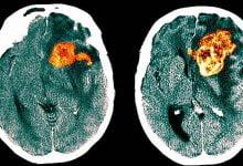 Created a drug against deadly glioblastoma