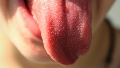 Photo of Tongue cancer: doctors called symptoms that should not be ignored