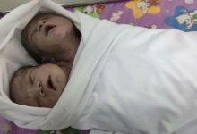 two headed boy was born in Myanmar