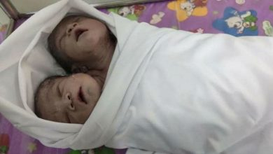 two headed boy was born in Myanmar