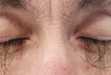 Cancer drug causes abnormal growth of eyelashes in woman