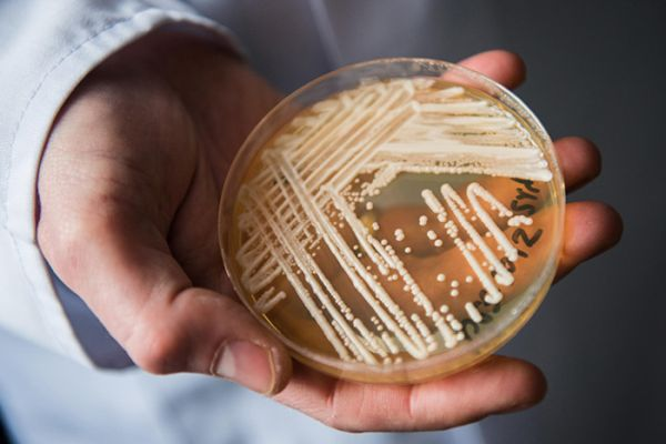 Brazil reports first case of deadly Candida auris