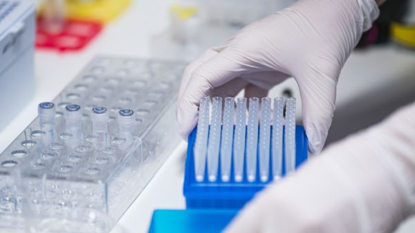 Professor appreciates reports of possible new disease in Congo