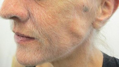 The grown beard in the Australian turned out to be a symptom of a fatal disease