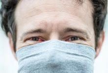 the main eye symptoms of coronavirus infection