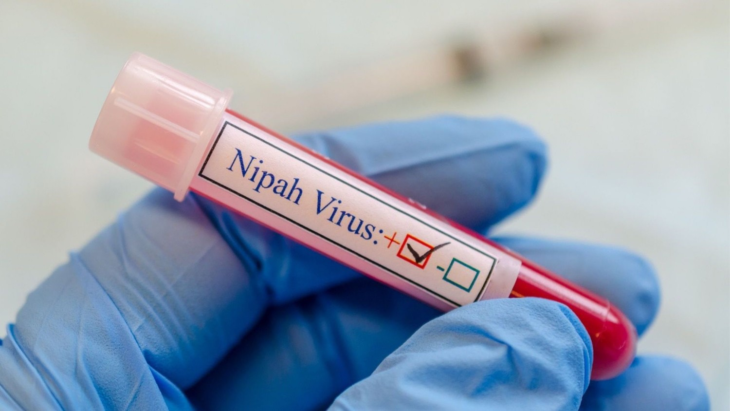 Experts warn pharmaceutical companies are not ready for the Nipah virus pandemic