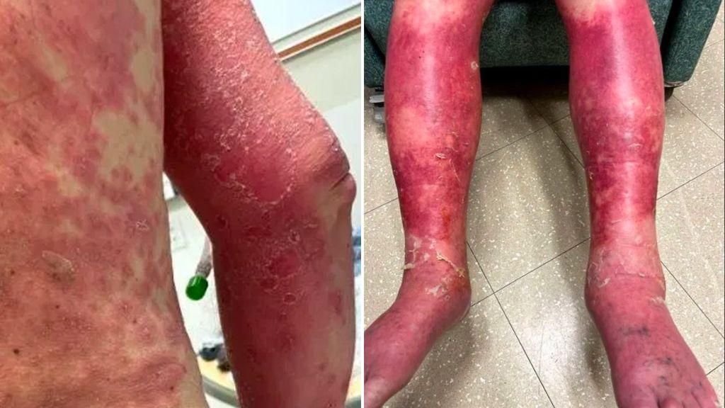 Virginia man has peeled skin after COVID 19 vaccine