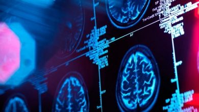 Mysterious new brain disease causes hallucinations and other unusual symptoms in patients