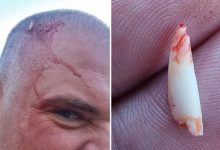 Shark broke a tooth on a mans head trying to bite him