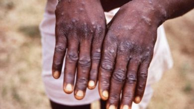 Monkeypox was discovered in the USA what is its danger