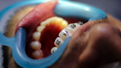 The woman broke into the dentists office and pulled out 13 teeth of the patient