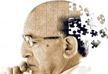 What is Alzheimers 1